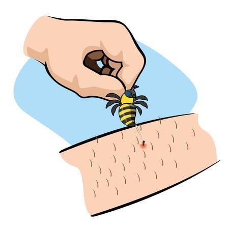 remove sting