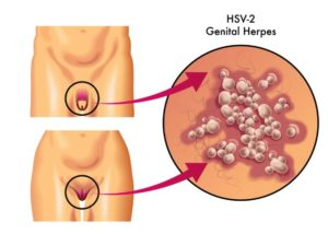 Human Genital Herpes
